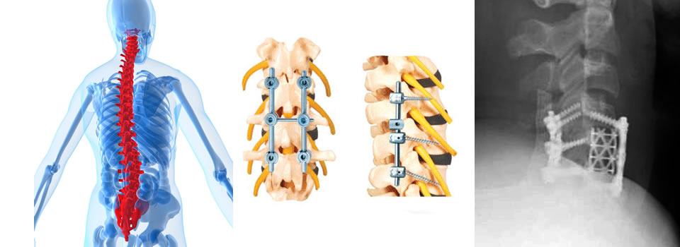cage_hooks_spondylolisthesis_polyaxial_monoaxial_screws_spine