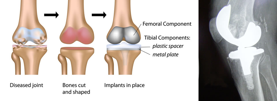 total_knee_replacement
